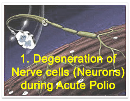1. Degeneration of Nerve cells (Neurons) during Acute Polio